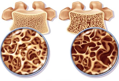 osteoporoza-kosti